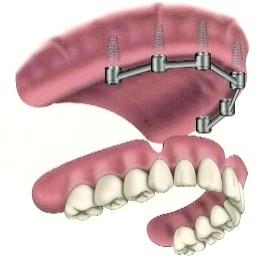 Stabilisation d'une prothèse par une barre sur 4 implants