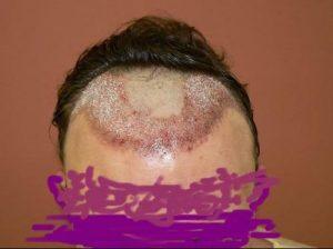 Greffe de cheveux mauvais résultats